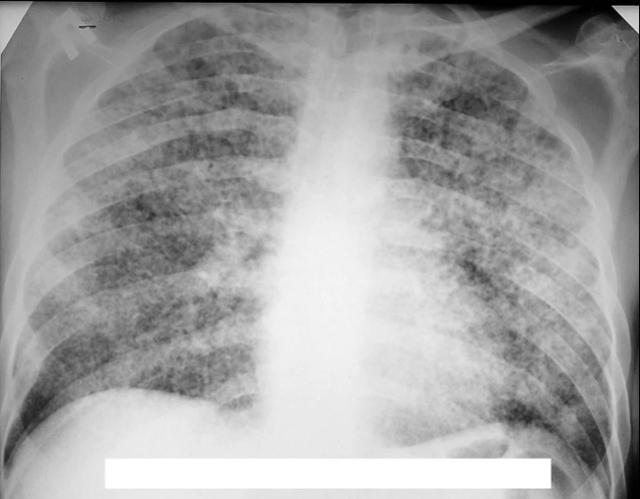 Рентген снимок легких здорового человека: как выглядит?