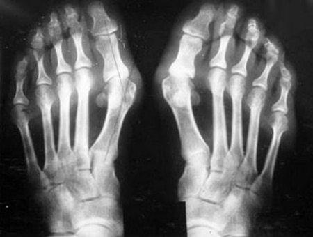 Рентген суставов: показания, подготовка, результаты
