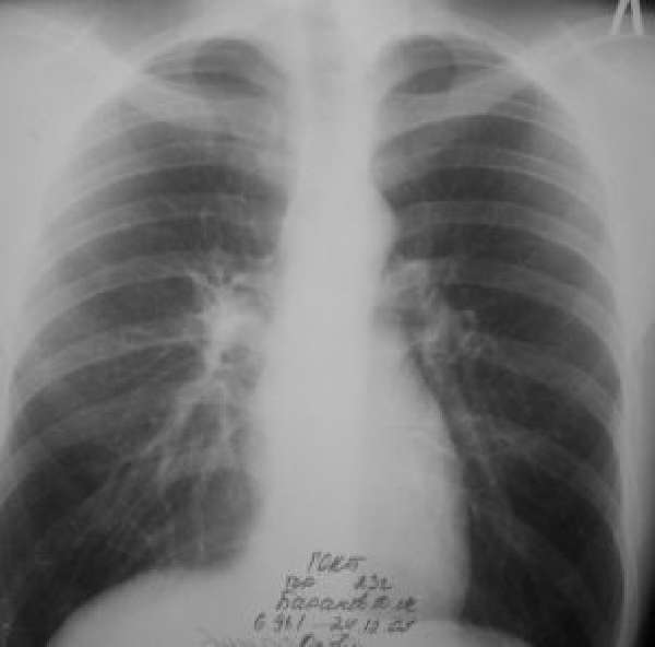 Усиление легочного рисунка на рентгене – что это?