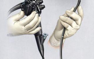 Подготовка к гастроскопии желудка в первой половине дня