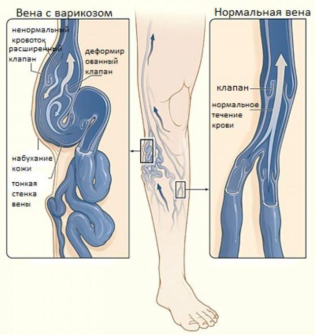 УЗИ сосудов и вен нижних конечностей (ног)