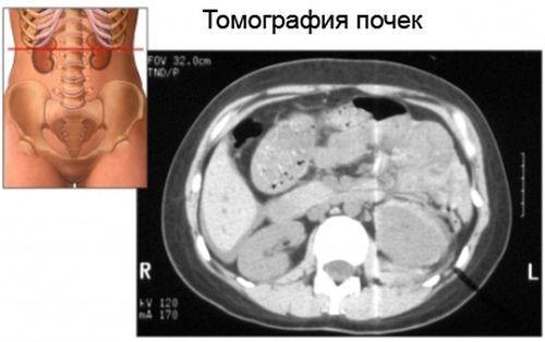 КТ (компьютерная томография) почек с контрастированием