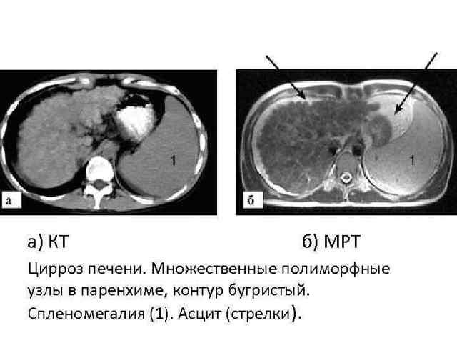 МРТ печени с контрастом: подготовка, результаты