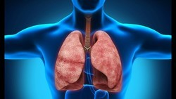 Может ли КТ не показать туберкулез?