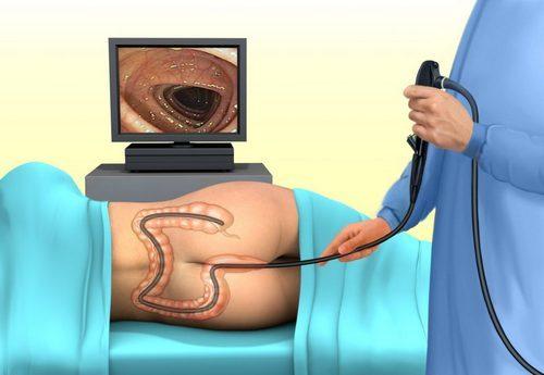 Эндоскопическое исследование кишечника – что это, подготовка, описание