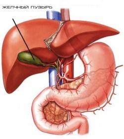 КТ (компьютерная томография) желчного пузыря