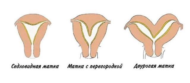 Лапароскопия при бесплодии: эффективность, подготовка, восстановление