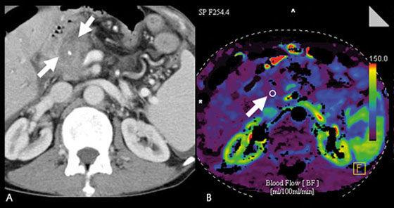 Компьютерная томография с контрастированием: как часто?