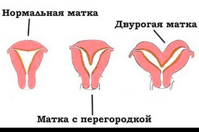 УЗИ матки и яичников: нормальные размеры, подготовка