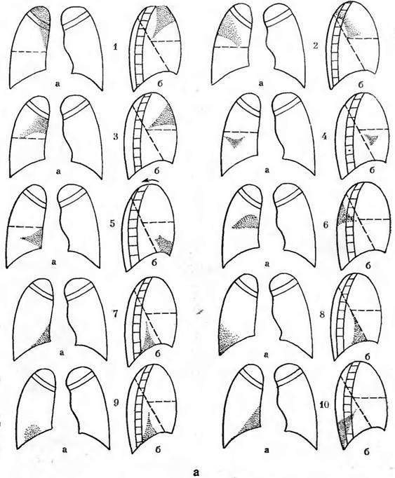 Сегменты легких на рентгенограмме: строение, топография, патологии