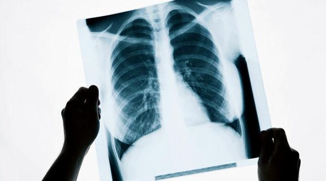 Как отсканировать рентгеновский снимок: можно ли на сканере?