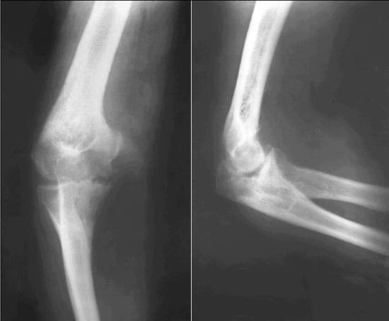 Рентген костей и суставов