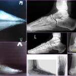 Рентген (рентгенография) стопы: как делают, снимок нормы, результаты