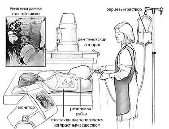 Ирригоскопия кишечника – что это такое, как проводится?