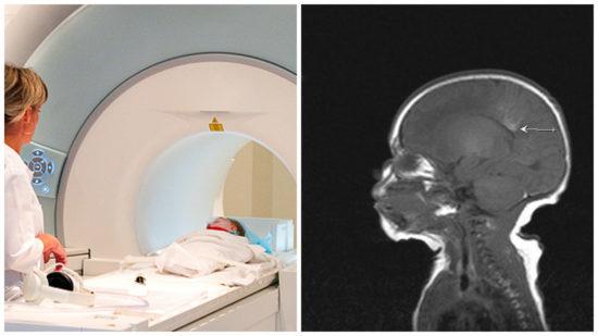 МРТ детям: показания и особенности выполнения