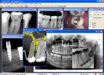 Стоматологический (дентальный) рентген: обзор аппаратов