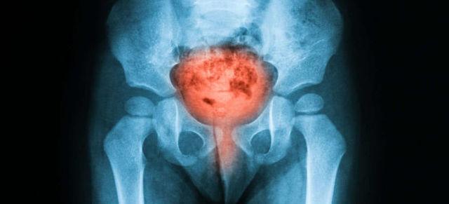 Рентген мочевого пузыря: подготовка, проведение, результаты