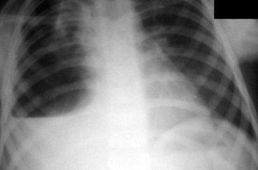 Рентген легких: подготовка, проведение, результаты
