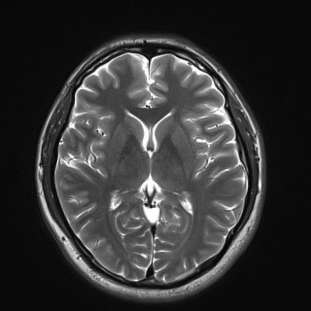 Опухоль головного мозга на МРТ