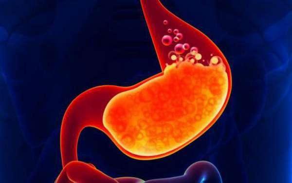 рентгенография желудка и двенадцатиперстной кишки