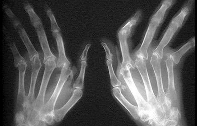 Рентген стадии и признаки ревматоидного артрита (РА)