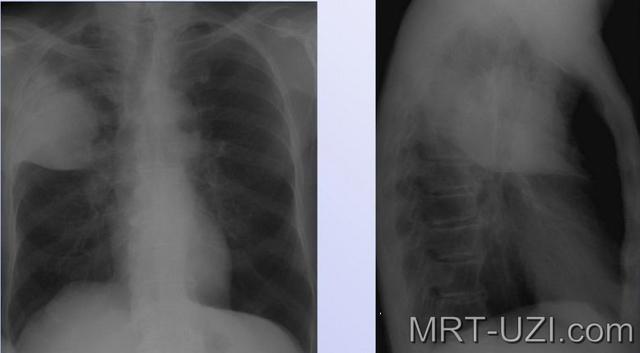 Рентген при раке легких: что показывает рентгенограмма?