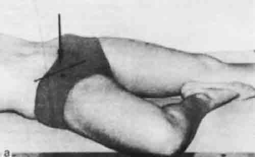 Рентген тазобедренного сустава: подготовка, как делают, результаты