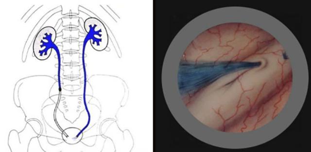 Хромоцистоскопия: показания, подготовка, проведение и результаты
