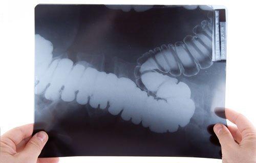 Рентген кишечника: показания, подготовка и проведение