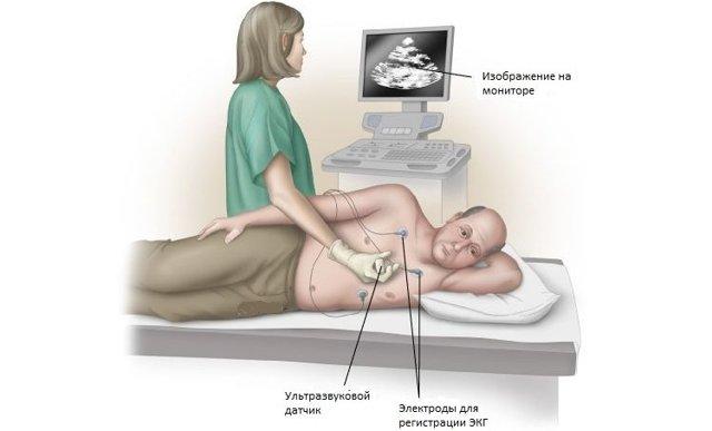 Эхо кардиограмма (ЭхоКГ)