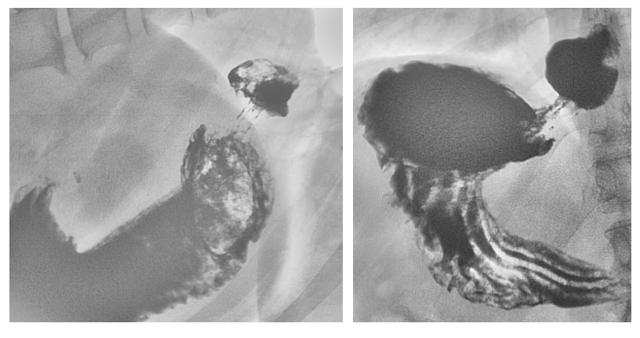 Компьютерная томография пищевода для диагностики ЖКТ
