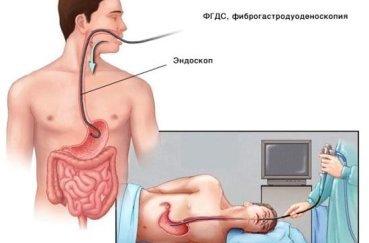 Гастроскопия желудка без глотания зонда: показания, подготовка