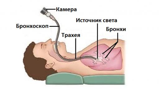 Как проводится бронхоскопия?