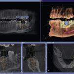 КТ зубов (3d) – показания, необходимость и информативность