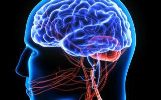 КТ головного мозга - что показывает, подготовка, проведение