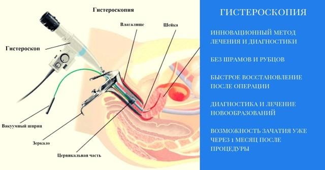 Почему после гистероскопии болит живот?