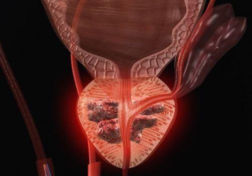 МРТ мочеполовой системы