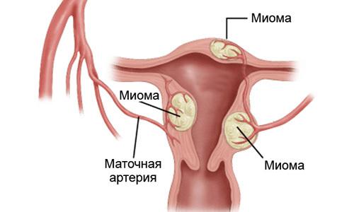 Необходимость УЗИ при гинекологических заболеваниях