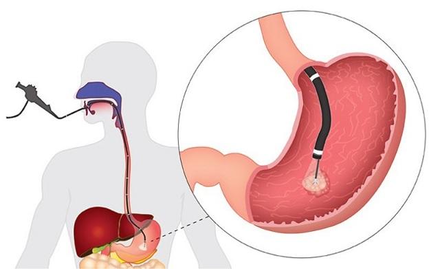 ЭГДС (эзофагогастродуоденоскопия) – что это такое и как ее делают?