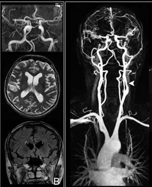 МРТ (ангиография) сосудов шеи – что показывает?