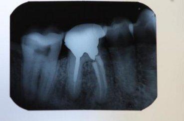 Рентгенография – что это такое?