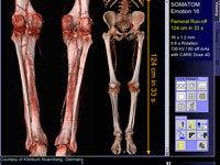 Мультиспиральная компьютерная томография (МСКТ) почек