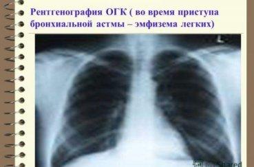 Что показывает рентген легких?