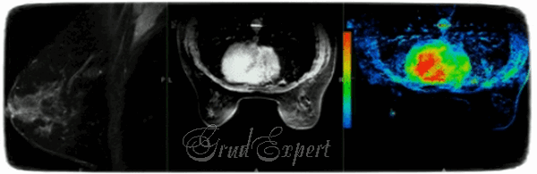 МРТ молочных желез: что показывает?