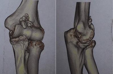 Рентген локтевого сустава: что показывает?