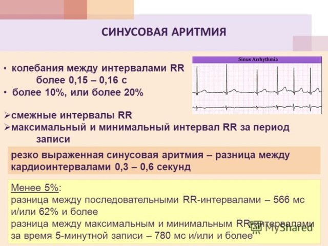 Что такое синусовый ритм на ЭКГ?