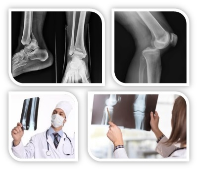 Рентген на дому: как вызвать и сделать?