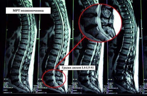 Показывает ли рентген грыжу позвоночника?