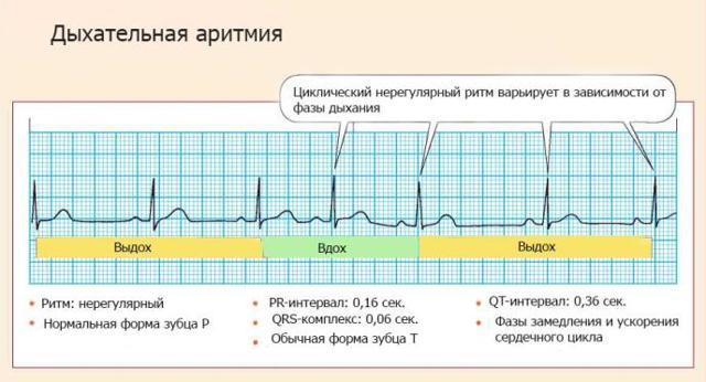 Нарушения ритма сердца на экг