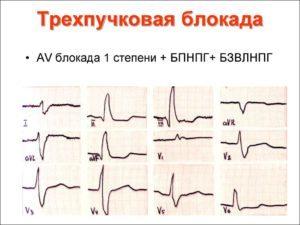 Нарушения внутрижелудочковой проводимости на ЭКГ